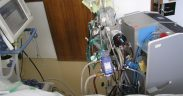 oxygénation extracorporelle